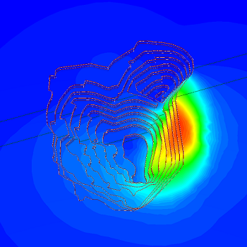 RS3 Figure 4: Displacement contours for open pit mine analysis.